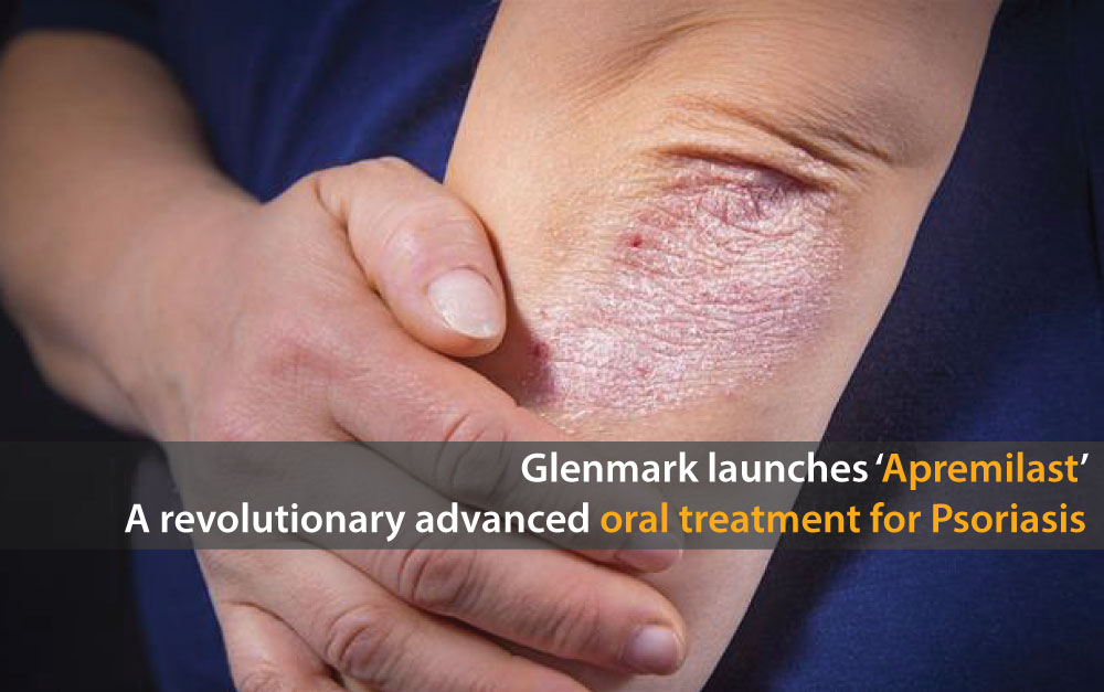 Glenmark Launches Apremilast