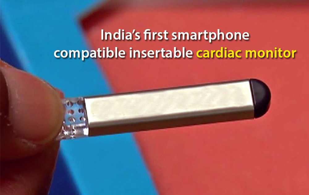 India's first smartphone insertable cardiac monitor