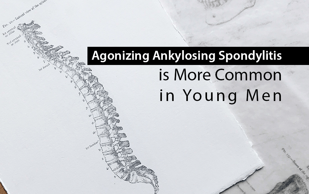 Agonizing Ankylosing Spondylitis is More Common in Young Men