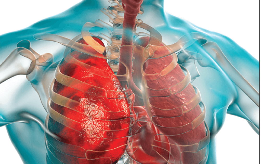 Faster Diagnostic Tests Developed for TB - InnoHEALTH magazine
