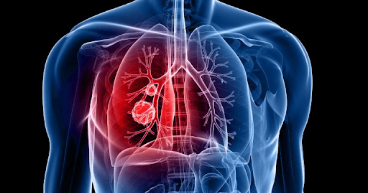 AI blood testing technology developed to detect lung cancers
